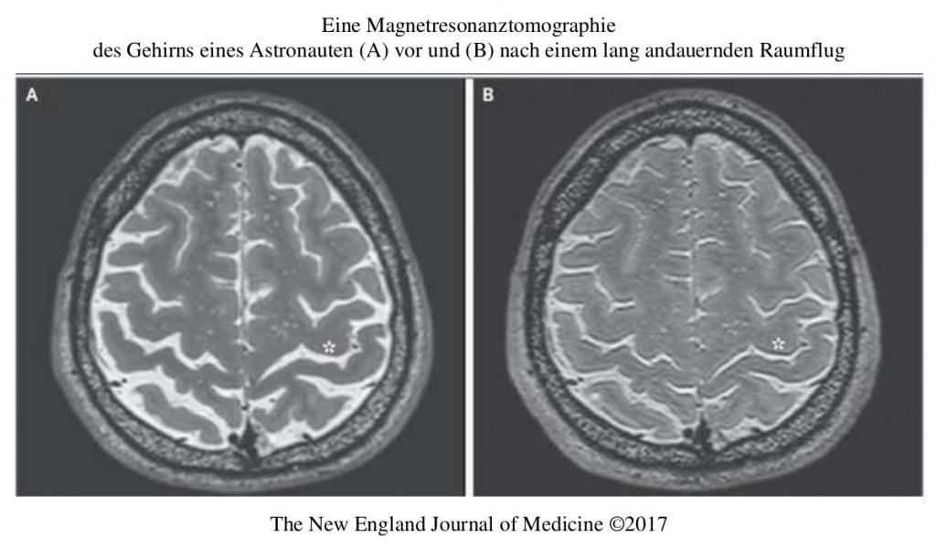 Veränderungen des menschlichen Gehirns im Weltraum anhand von MRT Sequenzen @ Observatorium Ludwigshöhe